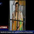 San Martín de Porres: ciudadano agrede a mordiscos a suboficial de la PNP