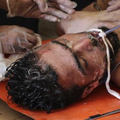 Siria: ataque con presunto material químico dejó al menos 58 muertos